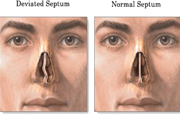 Difference between normal and deviated septum