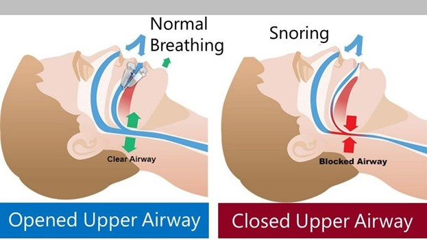 Two photos comparing airways with normal breathing vs snoring